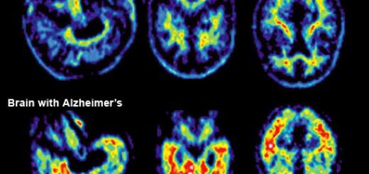 Alzheimer-cerebro